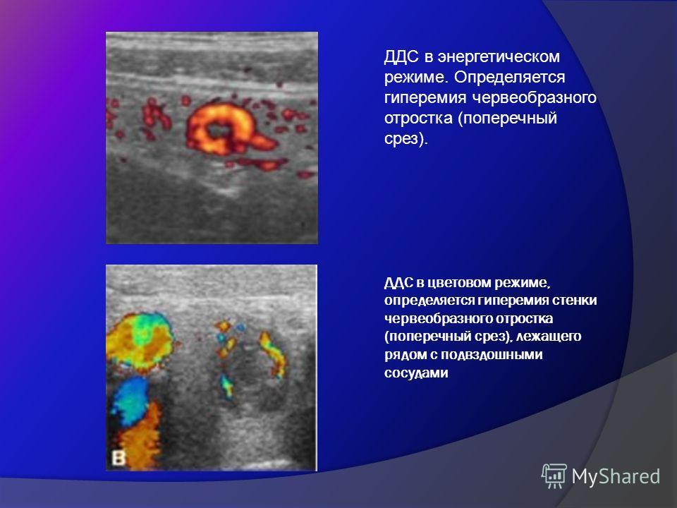 ДДС в цветовом режиме, определяется гиперемия стенки червеобразного отростка (поперечный срез), лежащего рядом с подвздошными сосудами ДДС в энергетическом режиме. Определяется гиперемия червеобразного отростка (поперечный срез).