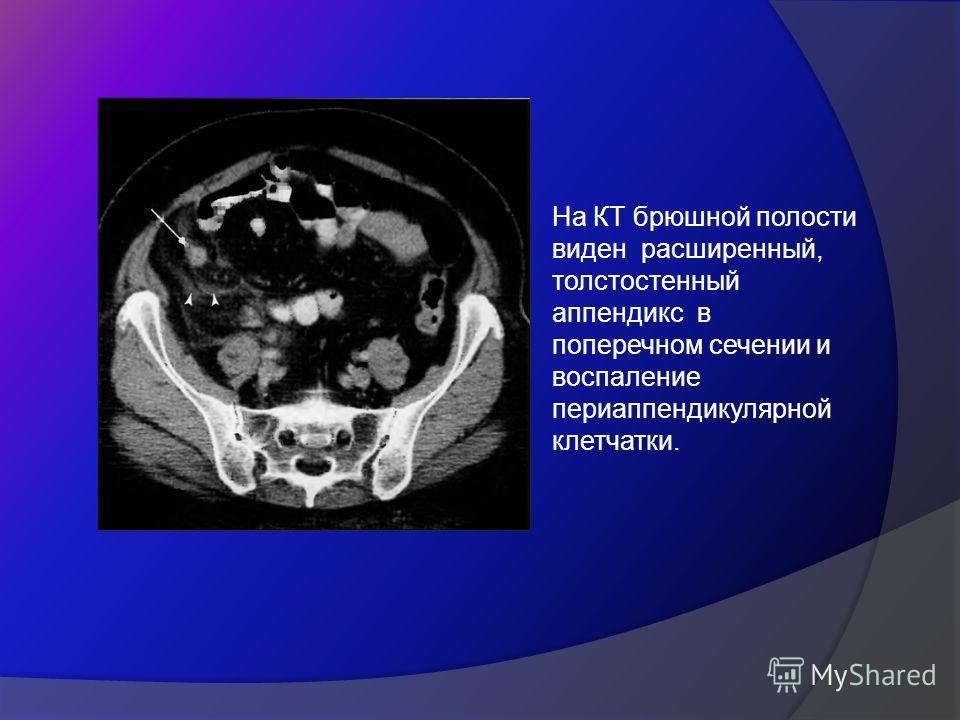 На КТ брюшной полости виден расширенный, толстостенный аппендикс в поперечном сечении и воспаление периаппендикулярной клетчатки.
