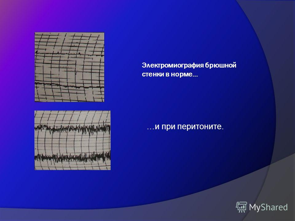 Электромиография брюшной стенки в норме… …и при перитоните.