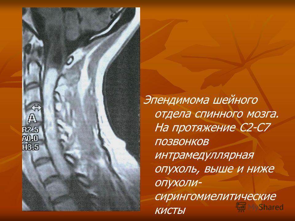 Эпендимома шейного отдела спинного мозга. На протяжение С2-С7 позвонков интрамедуллярная опухоль, выше и ниже опухоли- сирингомиелитические кисты