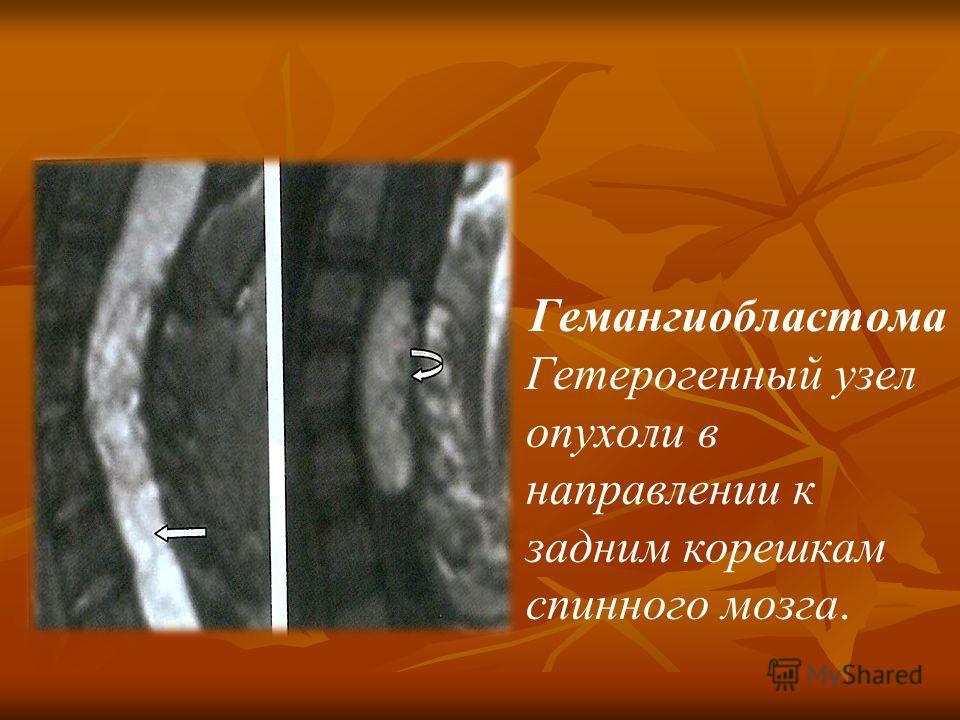Гемангиобластома Гетерогенный узел опухоли в направлении к задним корешкам спинного мозга.