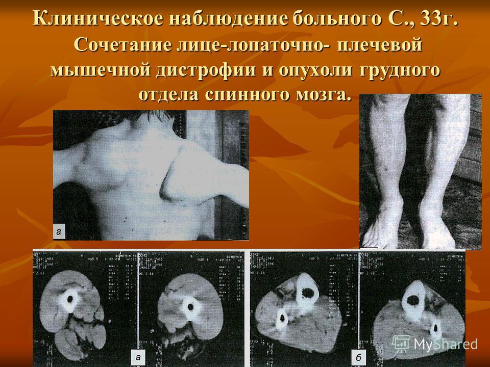 Клиническое наблюдение больного С., 33г. Сочетание лице-лопаточно- плечевой мышечной дистрофии и опухоли грудного отдела спинного мозга.
