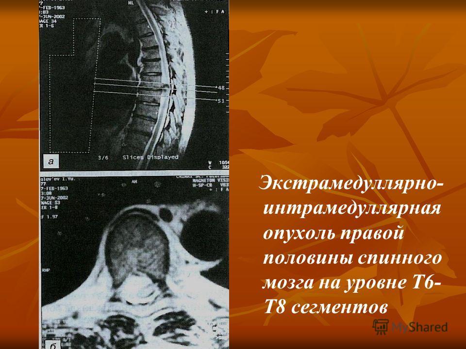 Экстрамедуллярно- интрамедуллярная опухоль правой половины спинного мозга на уровне Т6- Т8 сегментов