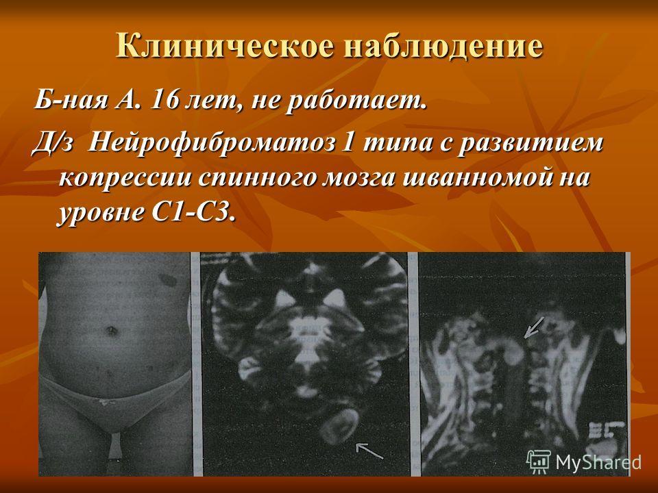 Клиническое наблюдение Б-ная А. 16 лет, не работает. Д/з Нейрофиброматоз 1 типа с развитием копрессии спинного мозга шванномой на уровне С1-С3.