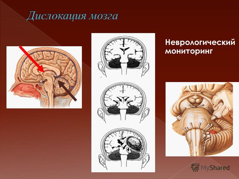 Неврологический мониторинг