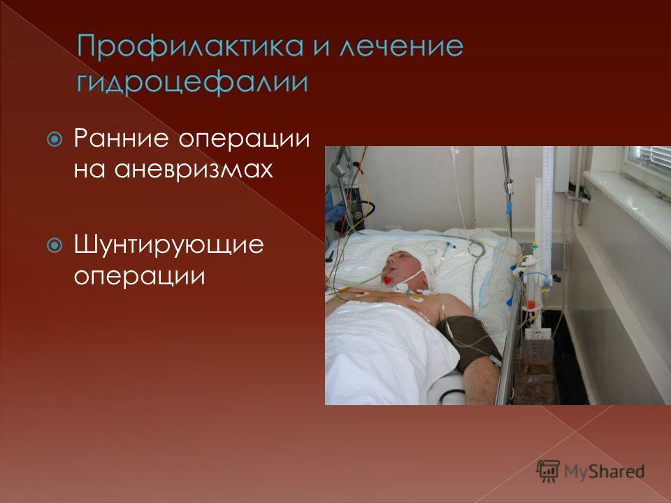Ранние операции на аневризмах Шунтирующие операции