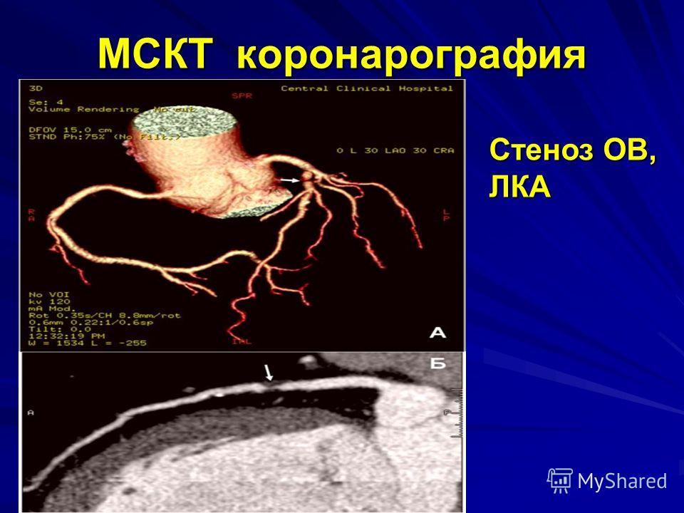 МСКТ коронарография Стеноз ОВ, ЛКА