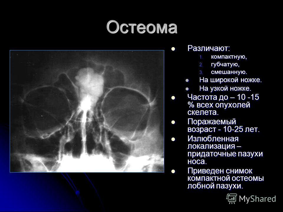 Остеома Различают: Различают: 1. компактную, 2. губчатую, 3. смешанную. На широкой ножке. На узкой ножке. Частота до – 10 -15 % всех опухолей скелета. Частота до – 10 -15 % всех опухолей скелета. Поражаемый возраст - 10-25 лет. Поражаемый возраст - 1