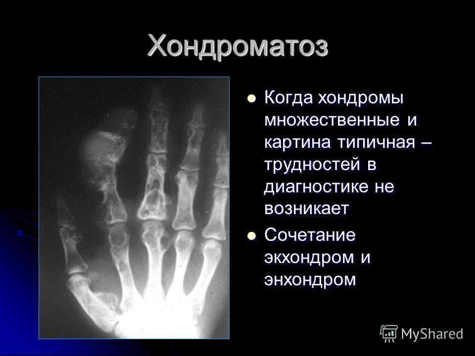 Хондроматоз Когда хондромы множественные и картина типичная – трудностей в диагностике не возникает Когда хондромы множественные и картина типичная – трудностей в диагностике не возникает Сочетание экхондром и энхондром Сочетание экхондром и энхондро