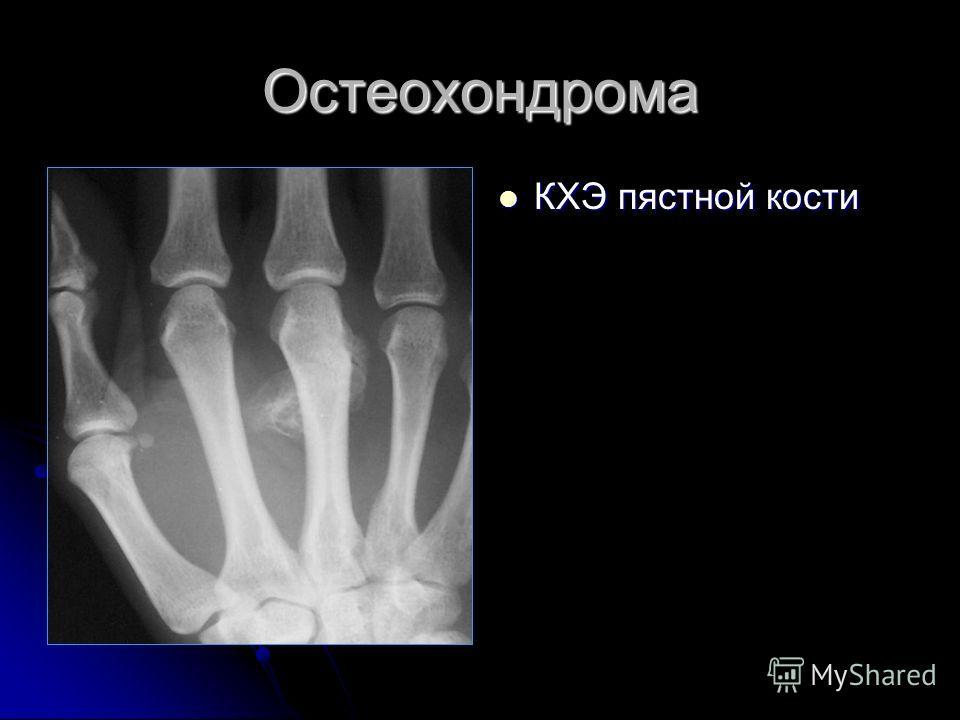 Остеохондрома КХЭ пястной кости КХЭ пястной кости