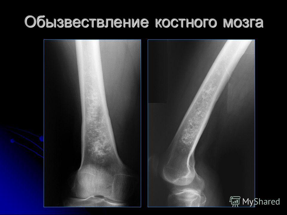 Обызвествление костного мозга