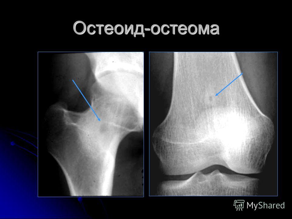 Остеоид-остеома