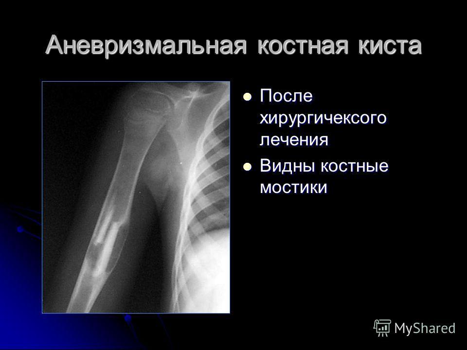 После хирургичексого лечения После хирургичексого лечения Видны костные мостики Видны костные мостики