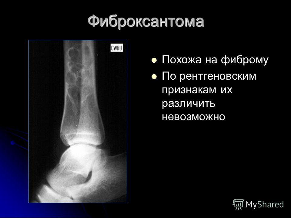 Фиброксантома Похожа на фиброму По рентгеновским признакам их различить невозможно