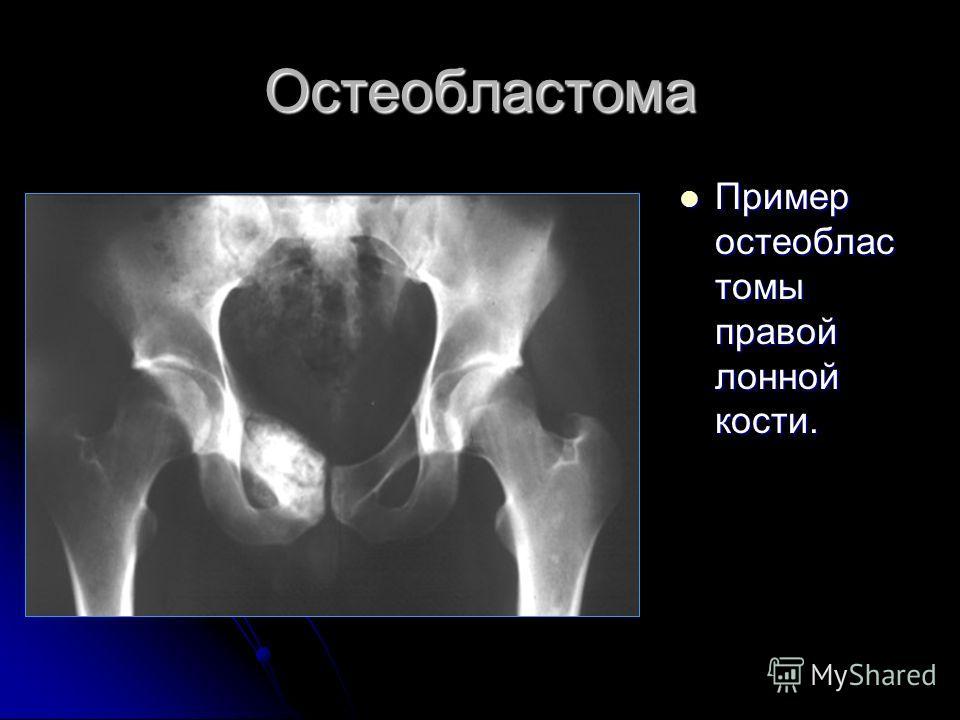 Остеобластома Пример остеоблас томы правой лонной кости. Пример остеоблас томы правой лонной кости.