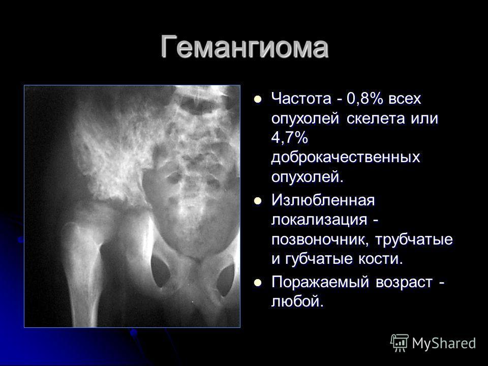 Гемангиома Частота - 0,8% всех опухолей скелета или 4,7% доброкачественных опухолей. Частота - 0,8% всех опухолей скелета или 4,7% доброкачественных опухолей. Излюбленная локализация - позвоночник, трубчатые и губчатые кости. Излюбленная локализация