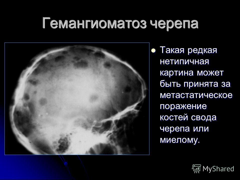 Гемангиоматоз черепа Такая редкая нетипичная картина может быть принята за метастатическое поражение костей свода черепа или миелому. Такая редкая нетипичная картина может быть принята за метастатическое поражение костей свода черепа или миелому.