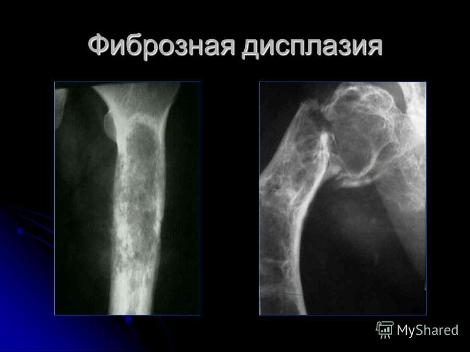 Кистозная дисплазия костей