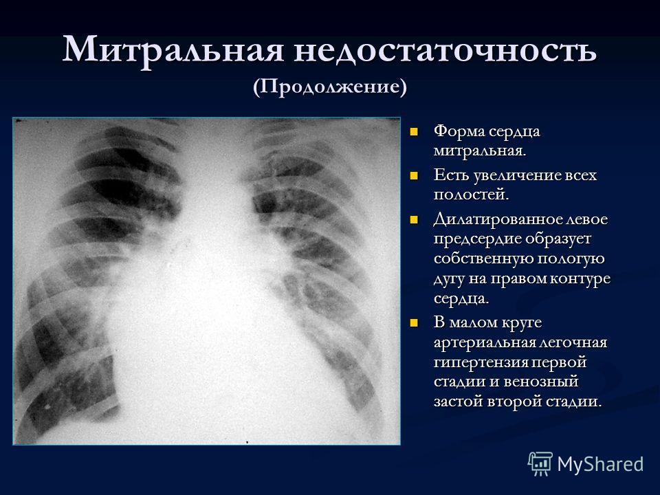 Митральная недостаточность (Продолжение) Форма сердца митральная. Есть увеличение всех полостей. Дилатированное левое предсердие образует собственную пологую дугу на правом контуре сердца. В малом круге артериальная легочная гипертензия первой стадии