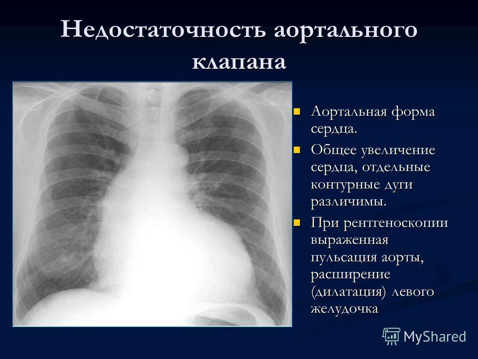 Недостаточность аортального клапана Аортальная форма сердца. Общее увеличение сердца, отдельные контурные дуги различимы. При рентгеноскопии выраженная пульсация аорты, расширение (дилатация) левого желудочка