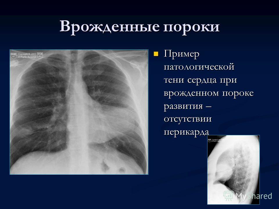 Врожденные пороки Пример патологической тени сердца при врожденном пороке развития – отсутствии перикарда