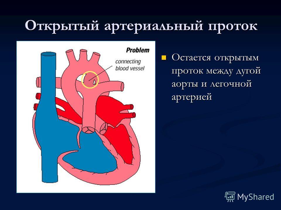 Открытый артериальный проток Остается открытым проток между дугой аорты и легочной артерией