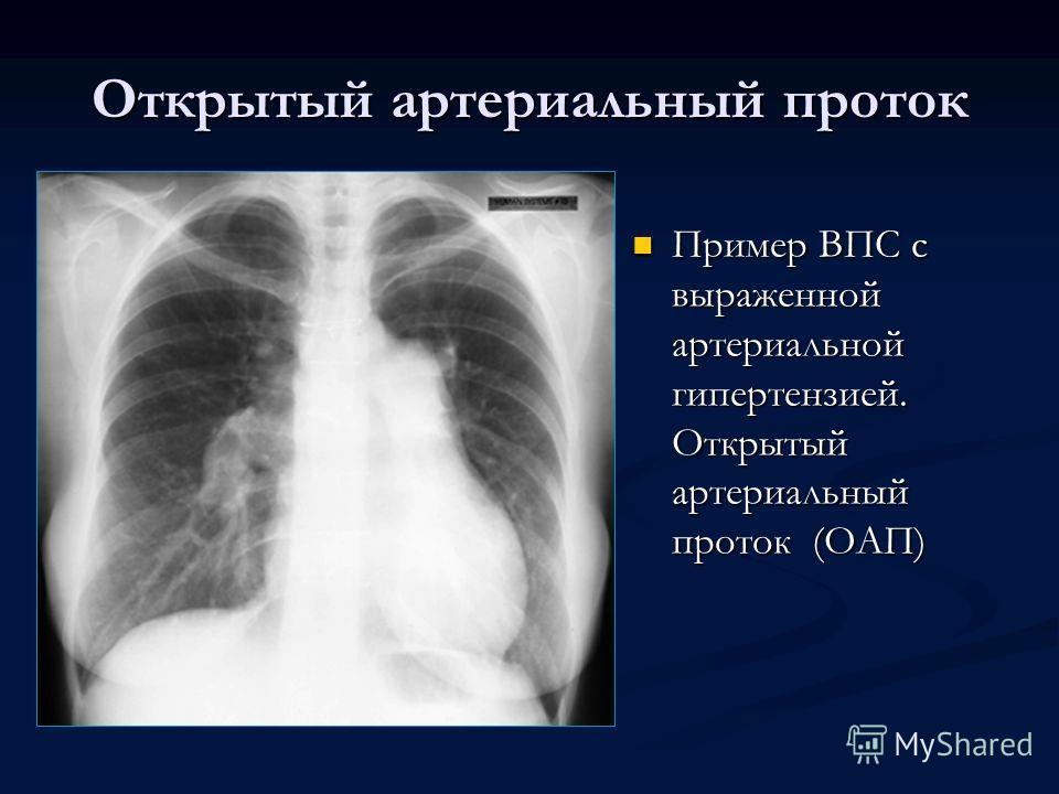 Открытый артериальный проток Пример ВПС с выраженной артериальной гипертензией. Открытый артериальный проток (ОАП)