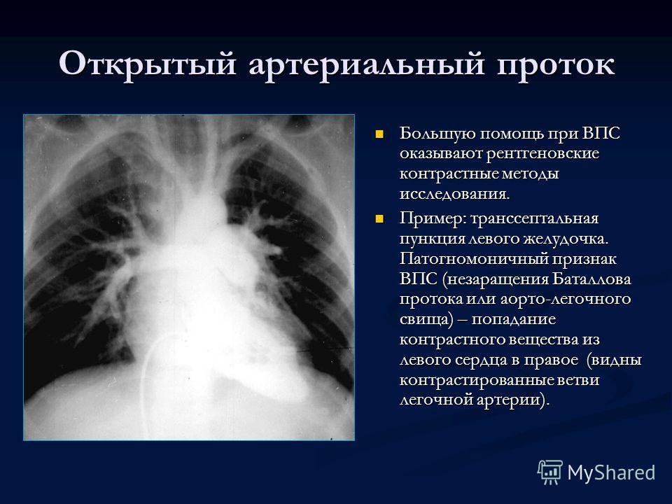 Открытый артериальный проток Большую помощь при ВПС оказывают рентгеновские контрастные методы исследования. Пример: транссептальная пункция левого желудочка. Патогномоничный признак ВПС (незаращения Баталлова протока или аорто-легочного свища) – поп