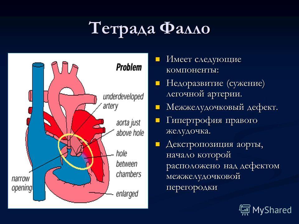 Тетрада Фалло Имеет следующие компоненты: Недоразвитие (сужение) легочной артерии. Межжелудочковый дефект. Гипертрофия правого желудочка. Декстропозиция аорты, начало которой расположено над дефектом межжелудочковой перегородки