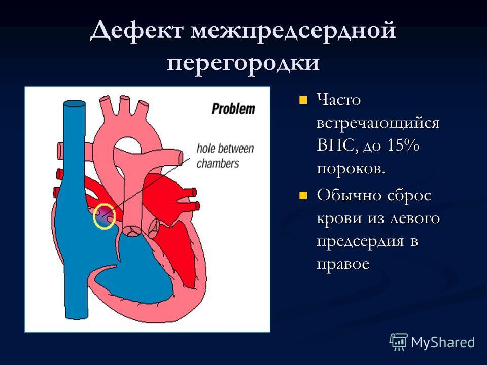 Дефект межпредсердной перегородки Часто встречающийся ВПС, до 15% пороков. Обычно сброс крови из левого предсердия в правое