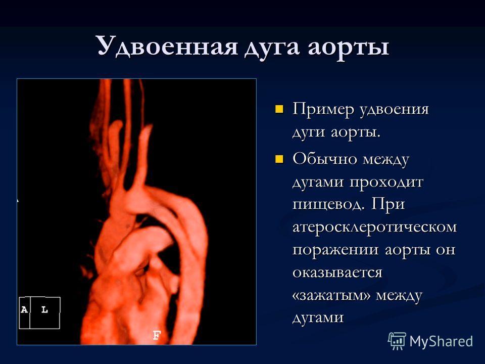 Удвоенная дуга аорты Пример удвоения дуги аорты. Обычно между дугами проходит пищевод. При атеросклеротическом поражении аорты он оказывается «зажатым» между дугами