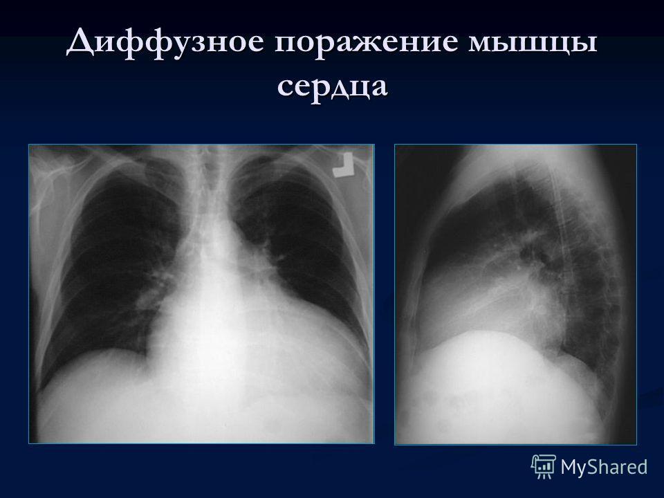 Диффузное поражение мышцы сердца