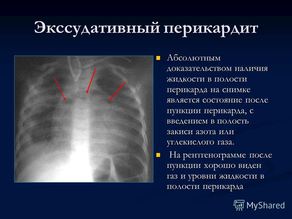 Абсолютным доказательством наличия жидкости в полости перикарда на снимке является состояние после пункции перикарда, с введением в полость закиси азота или углекислого газа. На рентгенограмме после пункции хорошо виден газ и уровни жидкости в полост