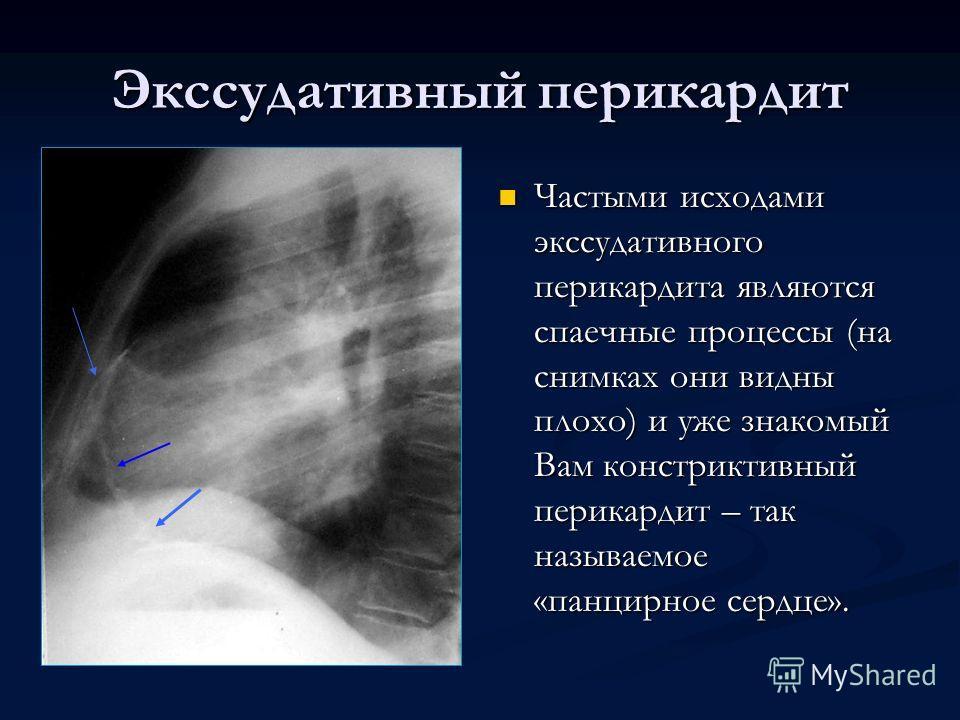Экссудативный перикардит Частыми исходами экссудативного перикардита являются спаечные процессы (на снимках они видны плохо) и уже знакомый Вам констриктивный перикардит – так называемое «панцирное сердце».