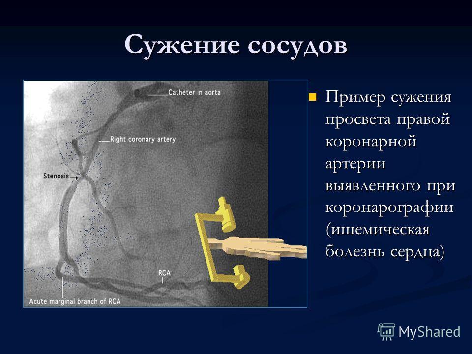 Сужение сосудов Пример сужения просвета правой коронарной артерии выявленного при коронарографии (ишемическая болезнь сердца)