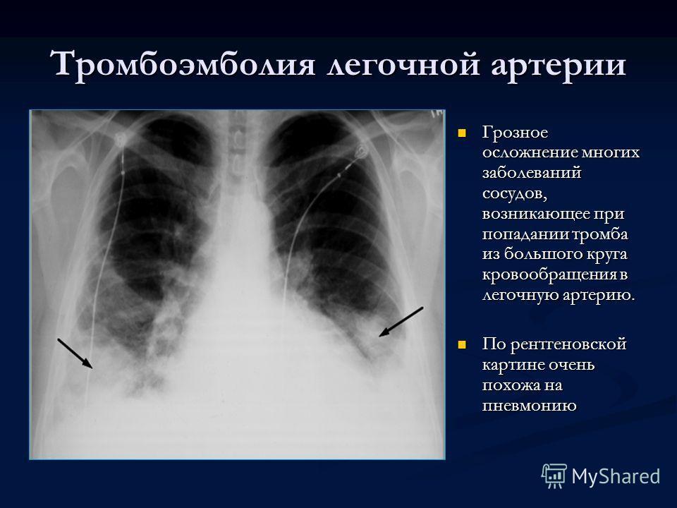 Тромбоэмболия легочной артерии Грозное осложнение многих заболеваний сосудов, возникающее при попадании тромба из большого круга кровообращения в легочную артерию. По рентгеновской картине очень похожа на пневмонию
