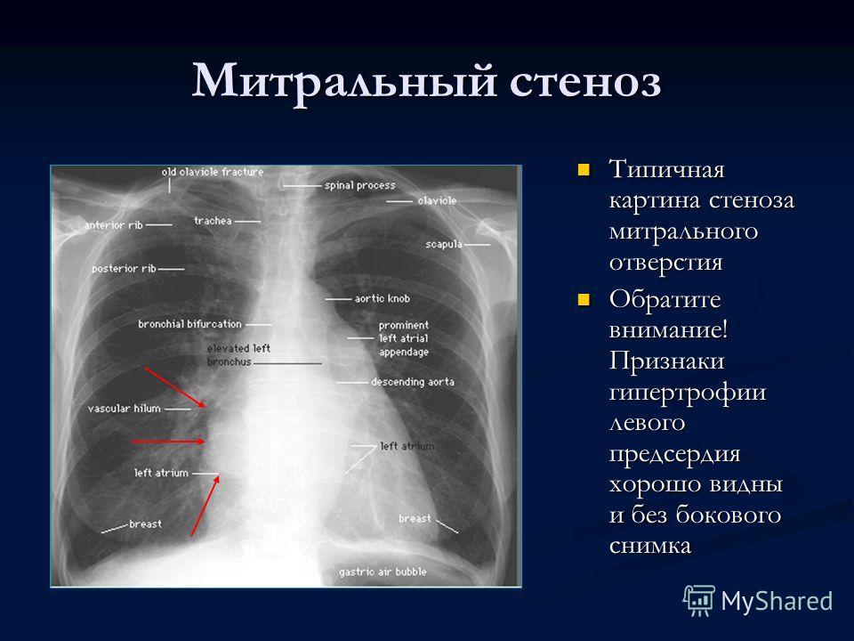 Митральный стеноз Типичная картина стеноза митрального отверстия Обратите внимание! Признаки гипертрофии левого предсердия хорошо видны и без бокового снимка