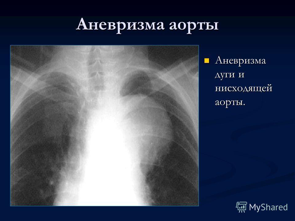 Аневризма аорты Аневризма дуги и нисходящей аорты.
