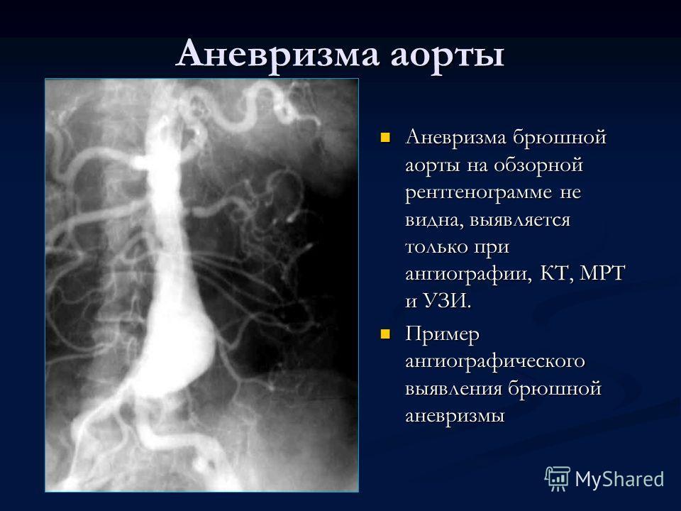 Аневризма брюшной аорты на обзорной рентгенограмме не видна, выявляется только при ангиографии, КТ, МРТ и УЗИ. Пример ангиографического выявления брюшной аневризмы