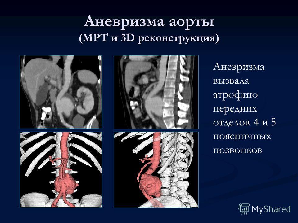 Аневризма аорты (МРТ и 3D реконструкция) Аневризма вызвала атрофию передних отделов 4 и 5 поясничных позвонков