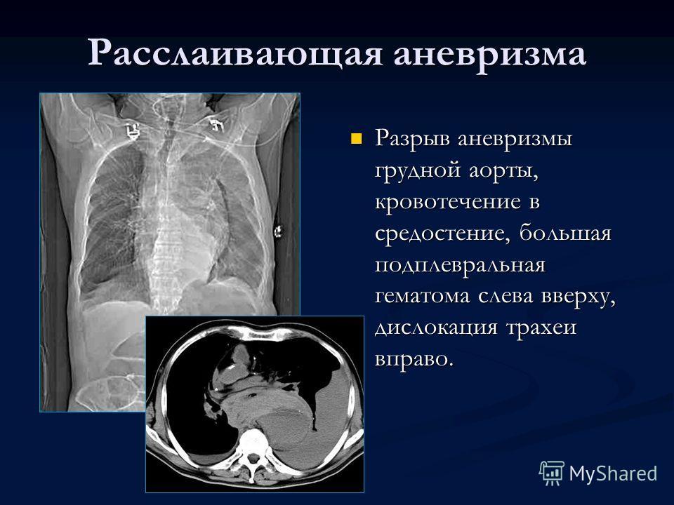 Разрыв аневризмы грудной аорты, кровотечение в средостение, большая подплевральная гематома слева вверху, дислокация трахеи вправо.