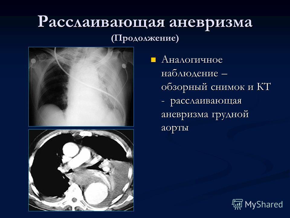 Расслаивающая аневризма (Продолжение) Аналогичное наблюдение – обзорный снимок и КТ - расслаивающая аневризма грудной аорты