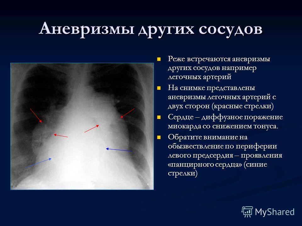 Аневризмы других сосудов Реже встречаются аневризмы других сосудов например легочных артерий На снимке представлены аневризмы легочных артерий с двух сторон (красные стрелки) Сердце – диффузное поражение миокарда со снижением тонуса. Обратите внимани