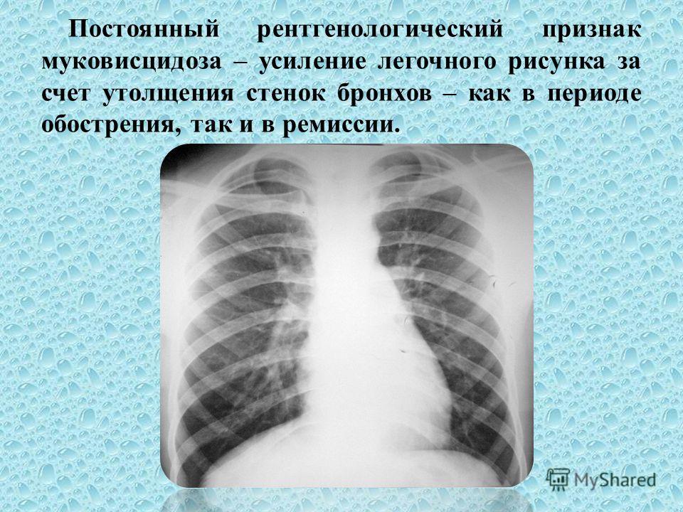 Постоянный рентгенологический признак муковисцидоза – усиление легочного рисунка за счет утолщения стенок бронхов – как в периоде обострения, так и в ремиссии.
