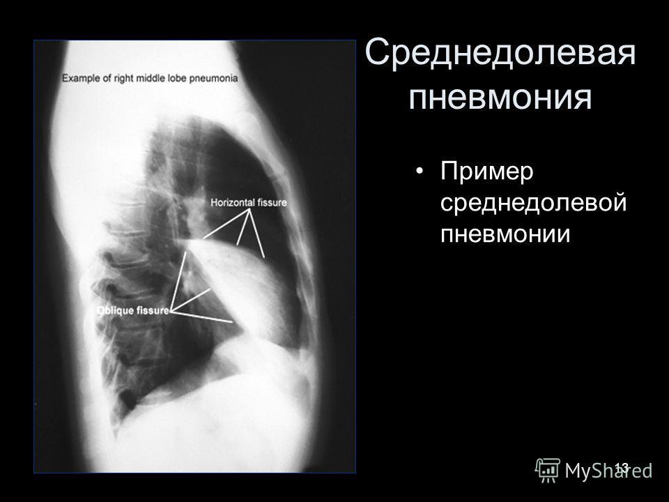 13 Среднедолевая пневмония Пример среднедолевой пневмонии