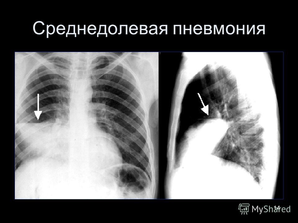 14 Среднедолевая пневмония