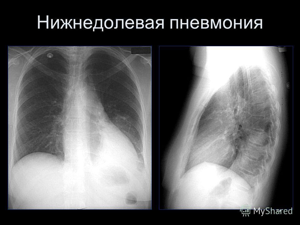 17 Нижнедолевая пневмония