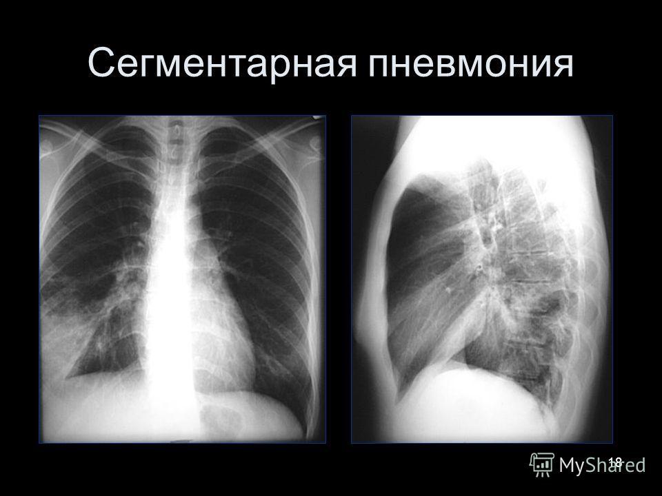 18 Сегментарная пневмония