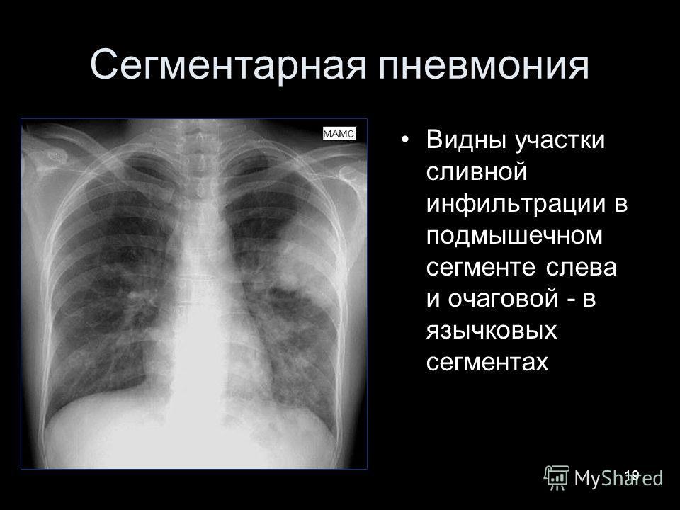 19 Сегментарная пневмония Видны участки сливной инфильтрации в подмышечном сегменте слева и очаговой - в язычковых сегментах