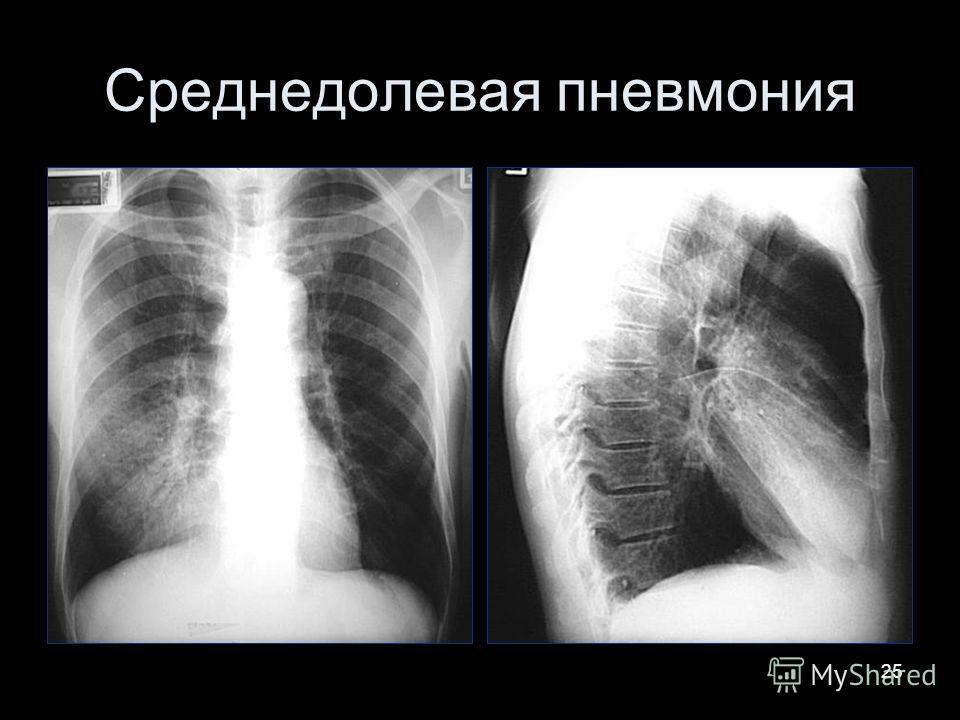 25 Среднедолевая пневмония